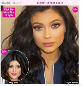 Kylie-Jenner-Lip-Augmentation-1-287x300