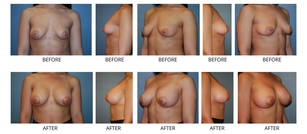breast augmentation nyc 1