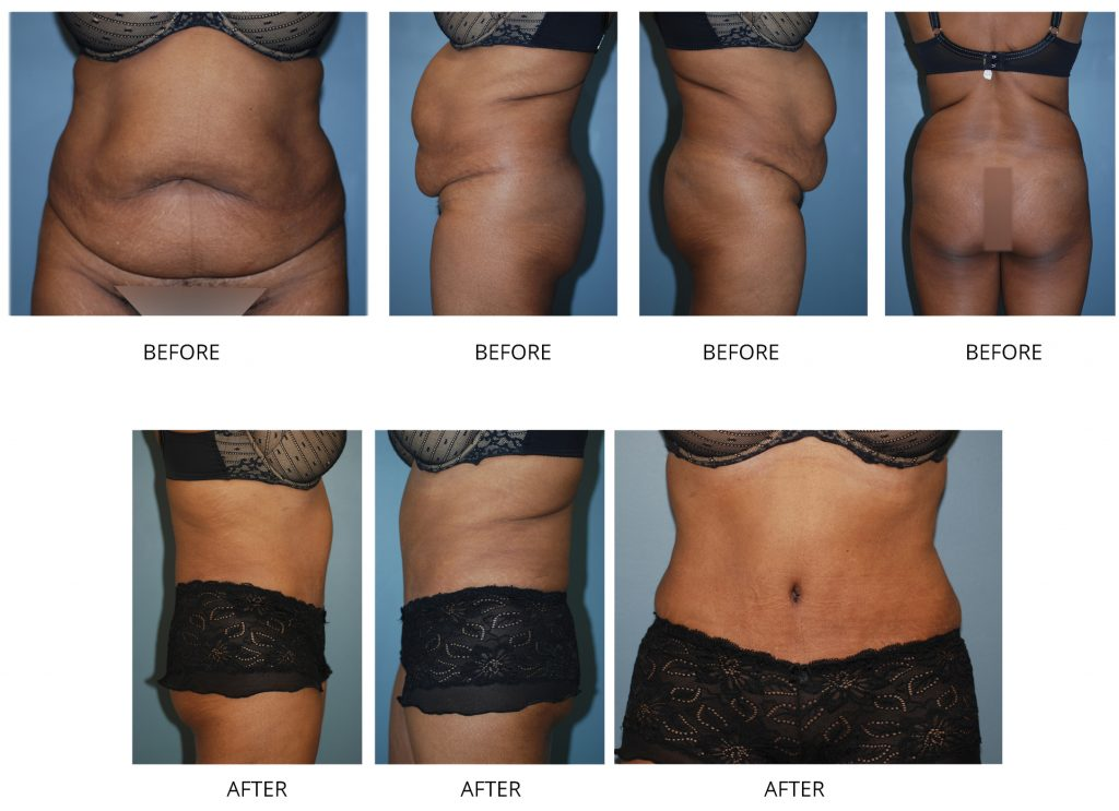 tummy tuck plastic surgeon nyc