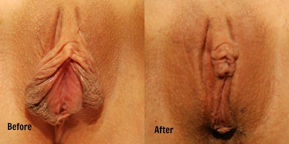 labiaplasty-image