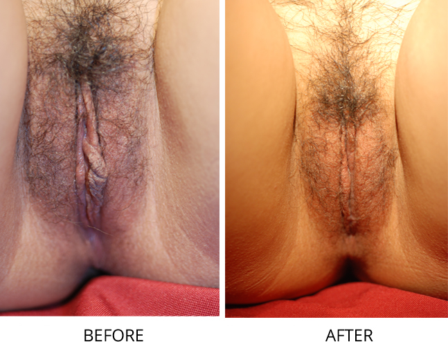 before-lipo