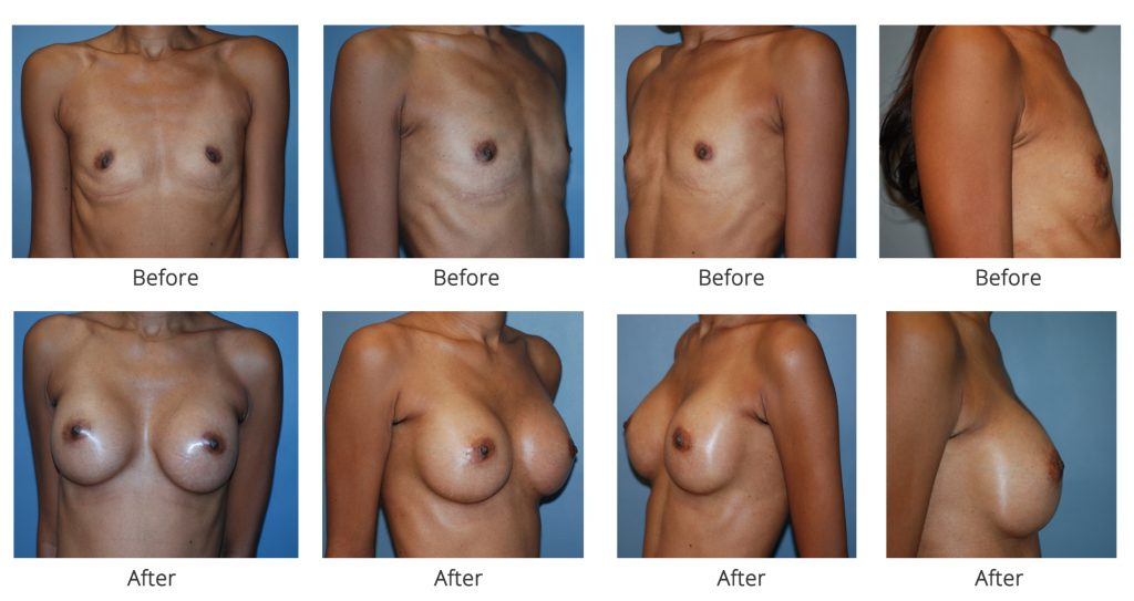 breast-augmentation-specialist-nyc-2