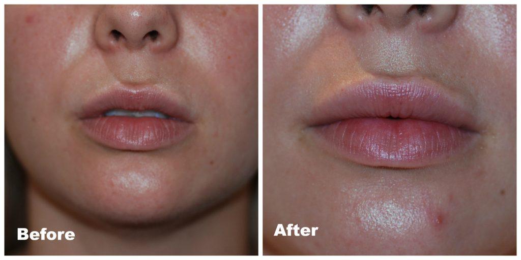 lip augment  (2)