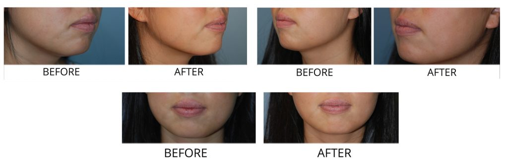 Buccal Fat Removal Long Island