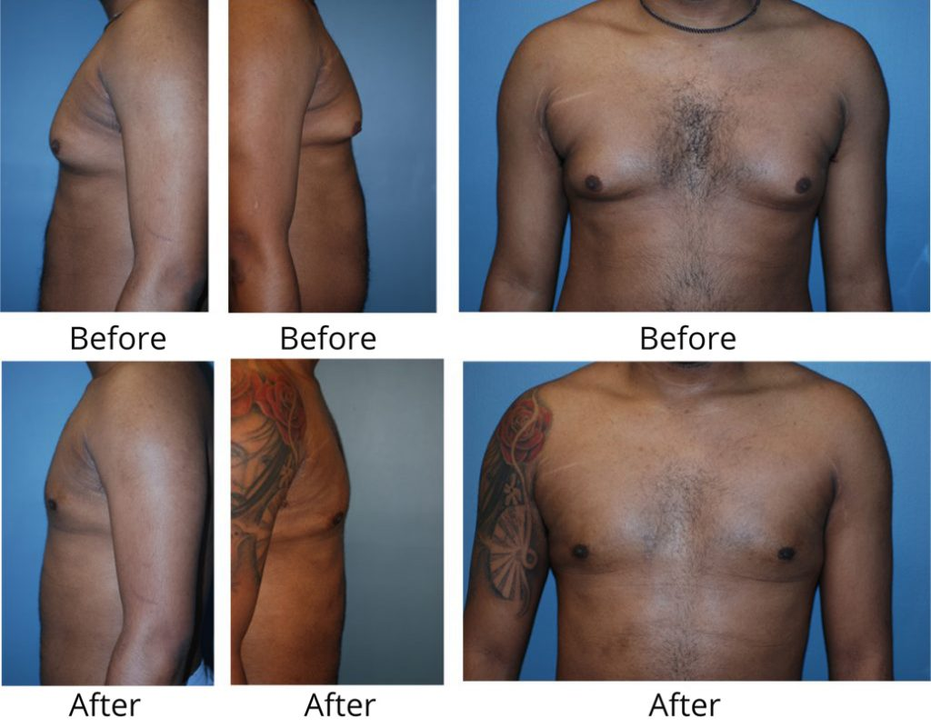 Male breast reduction manhattan
