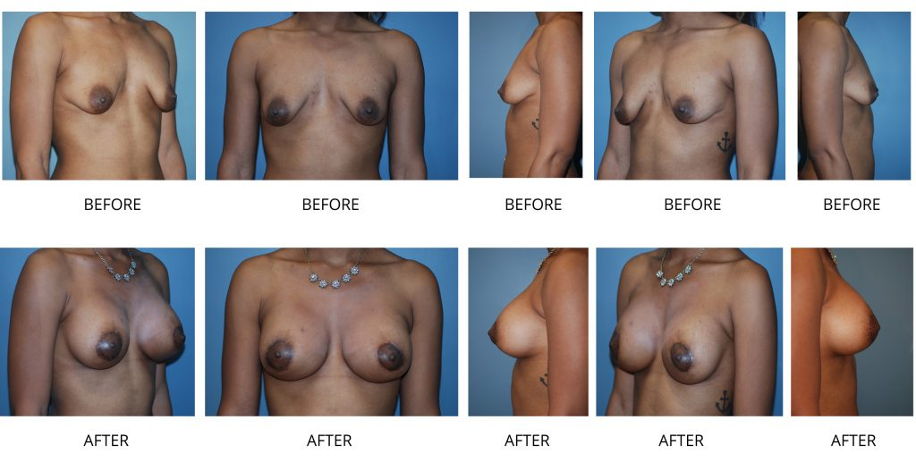 Breast augmentation in ashburn, northern virginia
